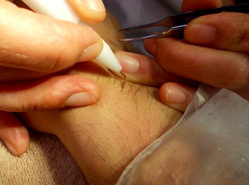 針脱毛は効果はあるが、その分痛みが大きい