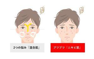 混合肌×ニキビ肌