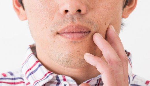 男性のシミ取りにおすすめの対策12選|シミの種類も徹底解説!