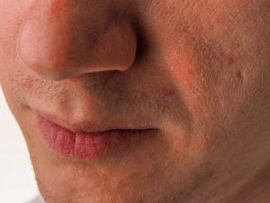 乾燥肌の特徴とおすすめスキンケア方法
