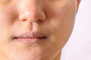 敏感肌の特徴とおすすめスキンケア方法