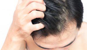 頭皮の奥まで浸透させるナノ技術の採用