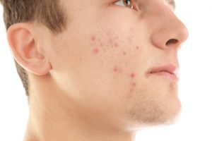 肌の汚れは毛穴のつまりやニキビなどのトラブルに