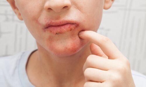 口周りが乾燥して粉吹き状態!原因と対策を紹介