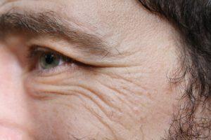 加齢により老化が一気に進む