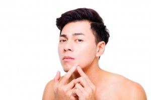 ニキビ跡に効く化粧水の選び方